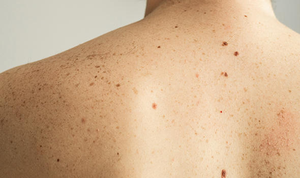 Freepik_close-up-detail-of-the-bare-skin-on-a-man-back-with-scattered-moles-and-freckles-checking-benign-moles_nastyaofly.jpg